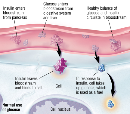 Type 1 Diabetes Mellitus Harvard Health