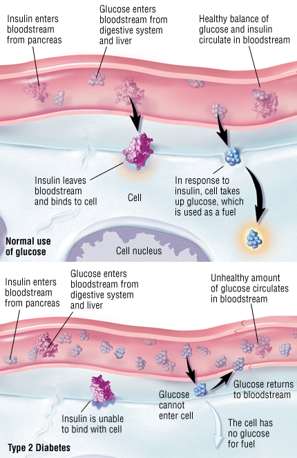 Type 2 Diabetes Mellitus Harvard Health