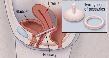 Uterine And Bladder Prolapse Harvard Health