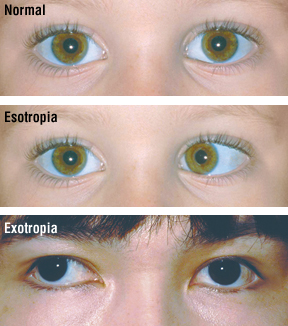 1037176e03 Crossed Eyes (Strabismus) - Harvard Health