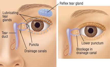 Blocked Tear Duct In Adults
