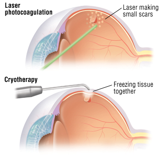 Detached retina harvard health laser photocoagulation a laser beam is focused on the retinal tear to seal it fandeluxe Images