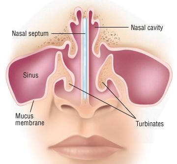 Deviated Septum Harvard Health
