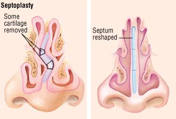 Deviated Septum - Harvard Health