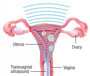 Dysfunctional Uterine Bleeding - Harvard Health