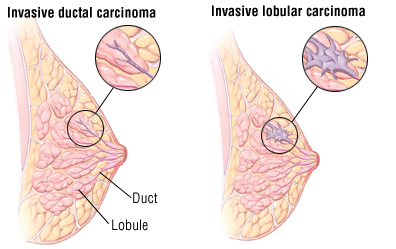 Breast cancer lobules