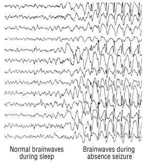 electroencephalogram eeg harvard health