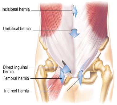 Hernia Repair - Harvard Health