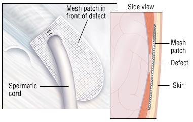 Adult repair hernia umbilical