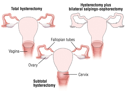 Image result for image of hysterectomy
