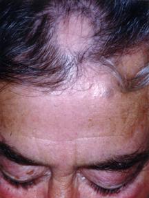Alopecia Areata - Harvard Health
