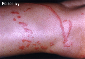 Contact Dermatitis Harvard Health