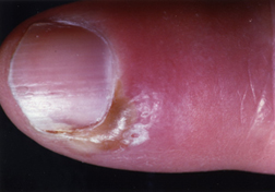 Acute Paronychia This Usually Ears As A Sudden Very Painful Area Of Swelling Warmth And Redness Around Fingernail Or Toenail After An