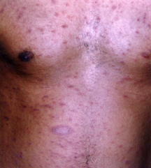 Pityriasis Rosea Harvard Health