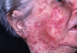 Rosacea Harvard Health