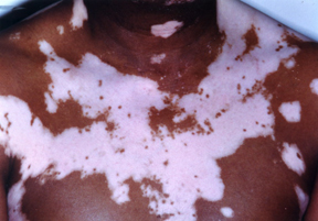 Vitiligo Harvard Health