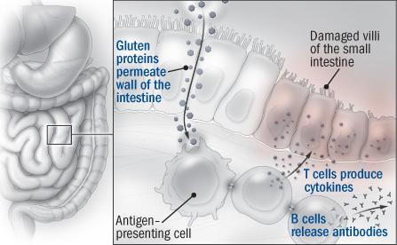 Celiac Disease (Non-Tropical Sprue) - Harvard HealthHarvard Health - Harvard University
