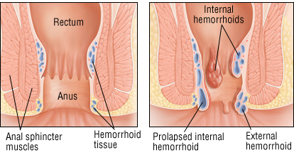 https://www.health.harvard.edu/a_to_z/hemorrhoids-a-to-z