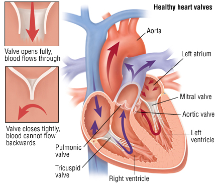 Heart valve replacement and sex
