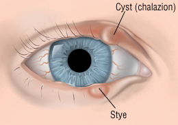 Styes And Chalazions - Harvard Health