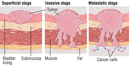 Bladder Cancer Harvard Health