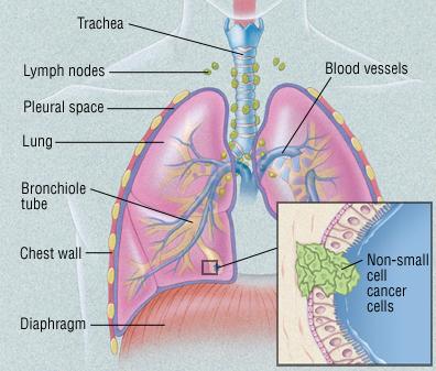https://www.health.harvard.edu/media/content/images/cr/355434.jpg