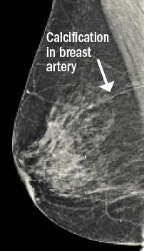 Calcifications breast positive for cancer