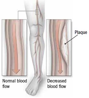 A leg up on peripheral artery disease - Harvard Health