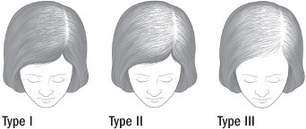 Illustration of the patterns of female hair loss