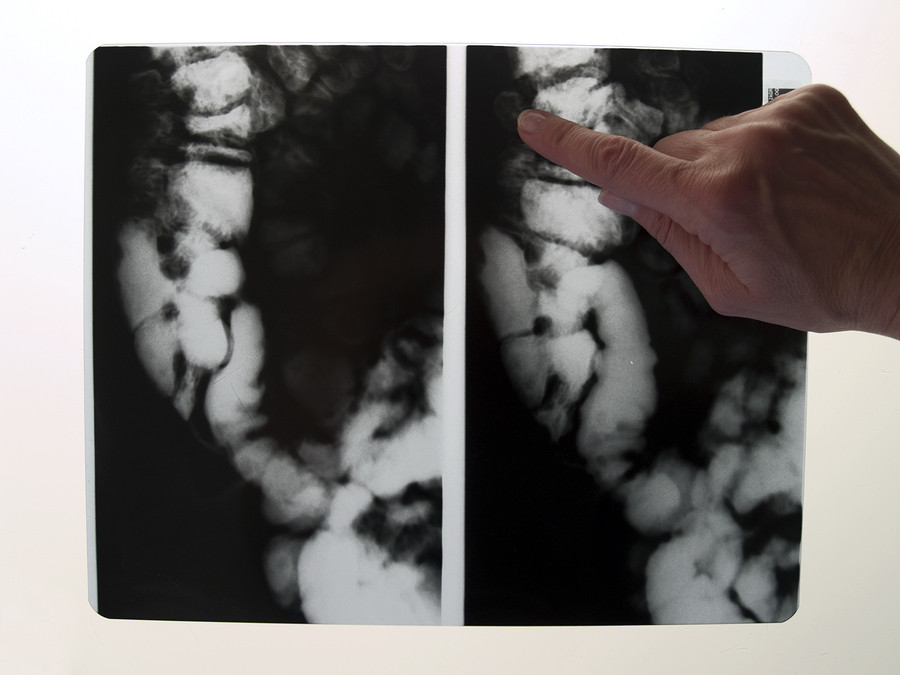results of colonoscopy
