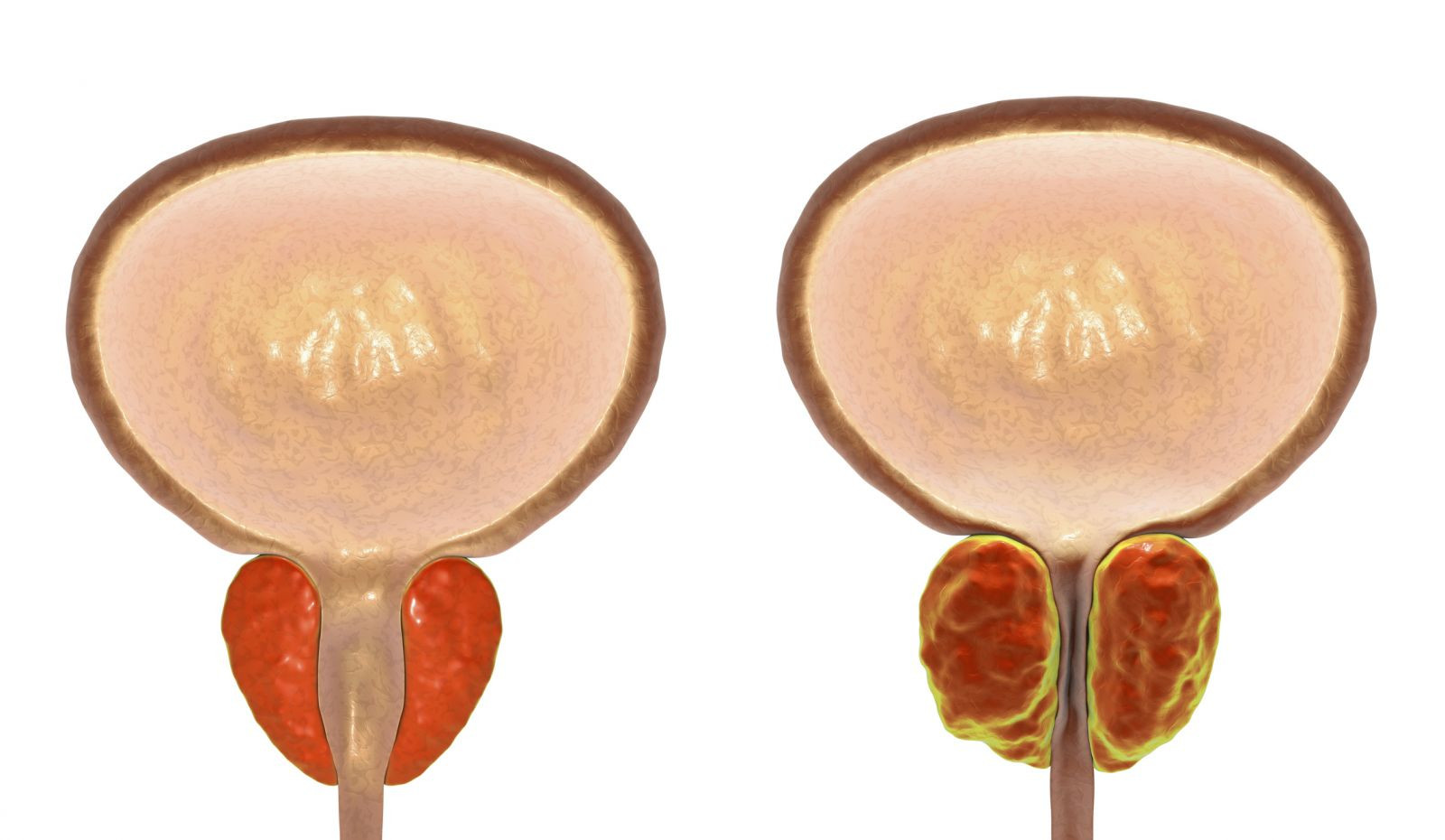 An enlarged prostate gland and incontinence