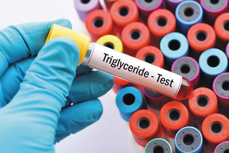 Keeping tabs on triglycerides - Harvard Health