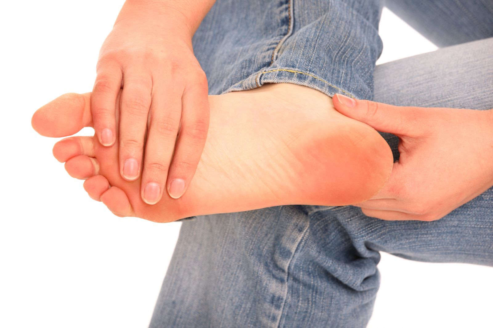 Manage Corns and Calluses Effectively