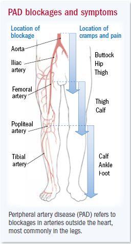 Artery Disease Below The Belt Harvard Health