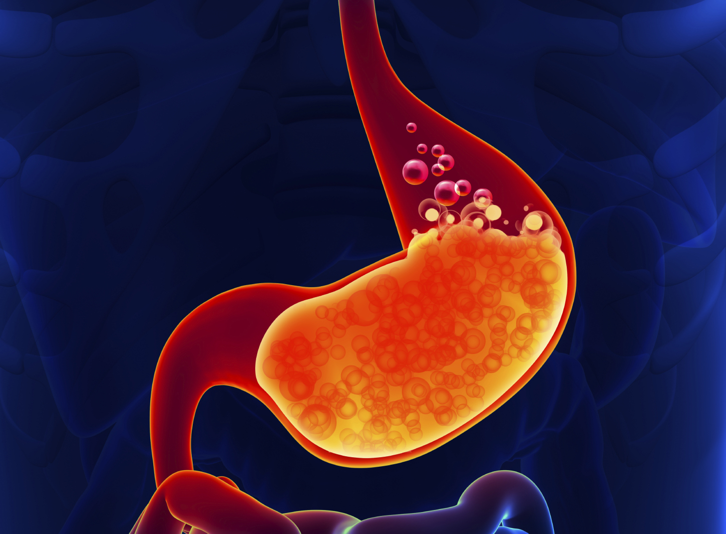 indigestion heartburn stomach ache small iStock 000041361180 Medium - 8 ways to quell the fire of heartburn