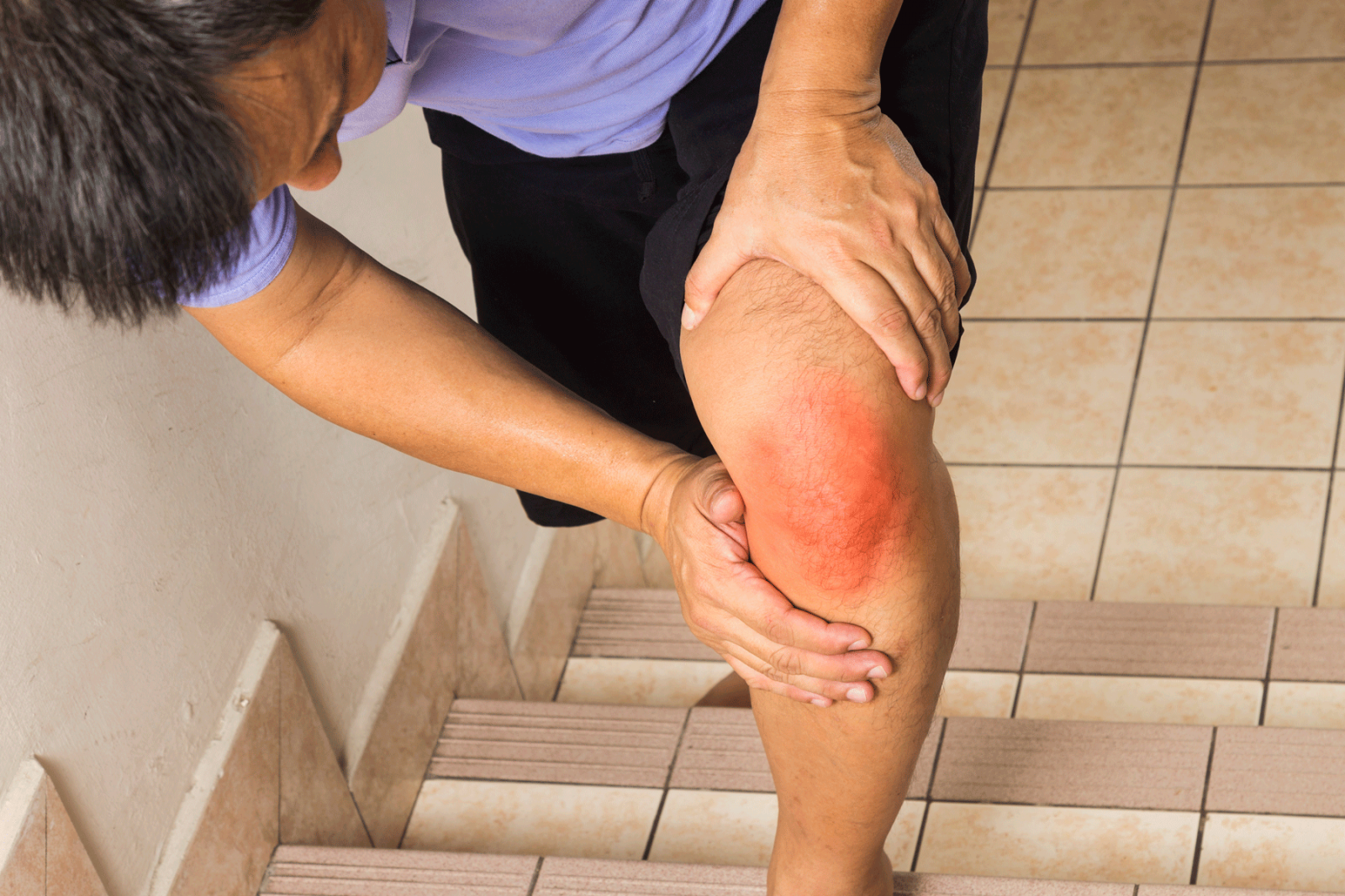 Exercise can ease rheumatoid arthritis pain - Harvard Health