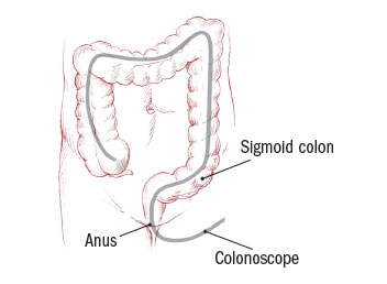 Colon Polyps Harvard Health