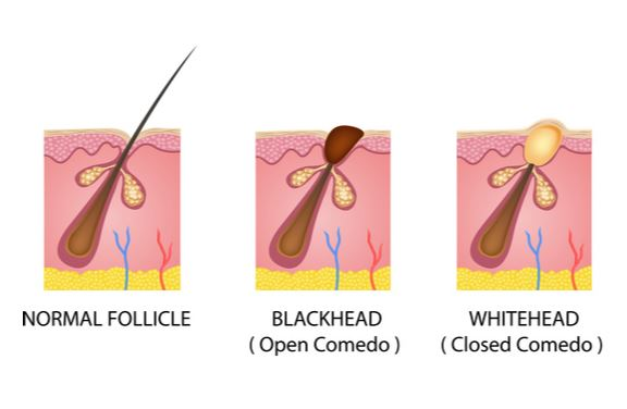 Acne - Harvard Health