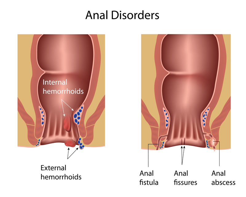 Pressure and constipation after anal sex