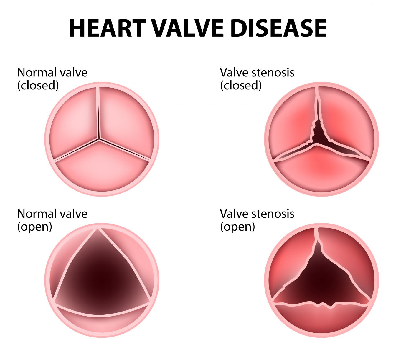 Heart Murmur - Harvard Health