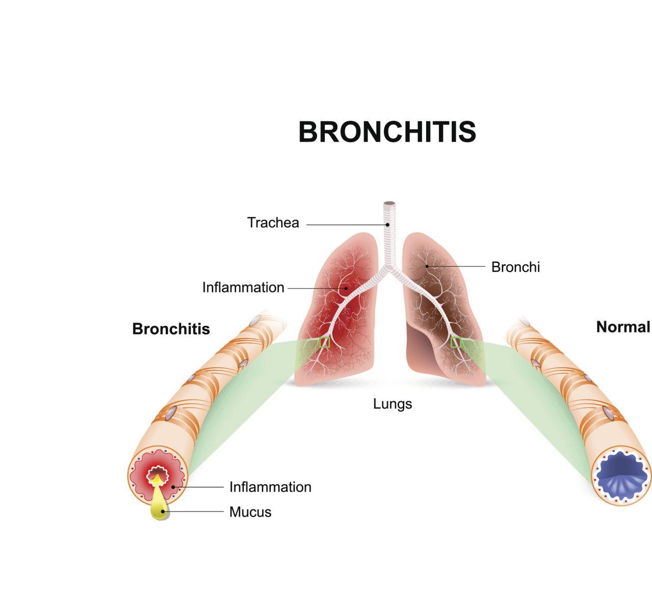 Acute Bronchitis - Harvard Health