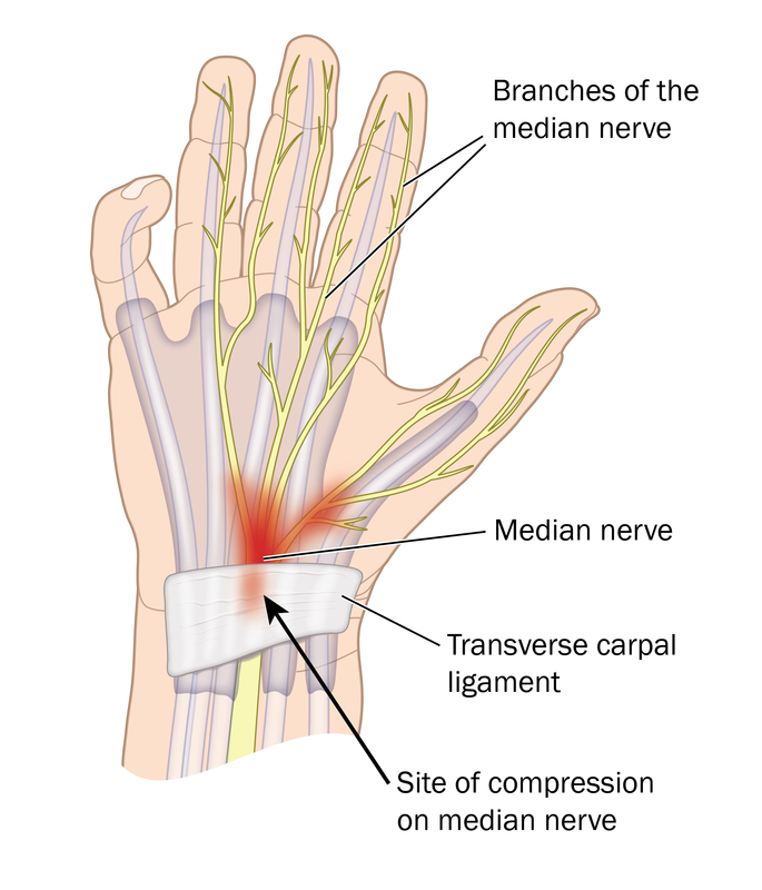 Carpal Tunnel Syndrome Harvard Health