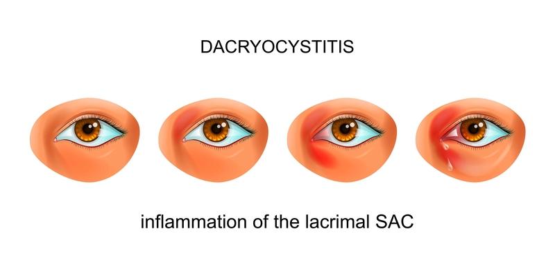 Tear Duct Infection (Dacryocystitis) - Harvard Health