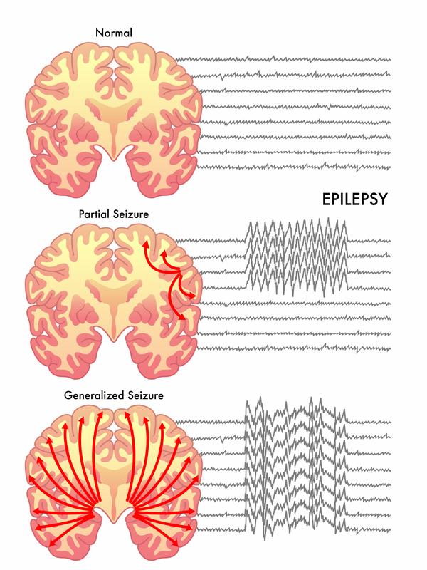 Seizure Overview - Harvard Health