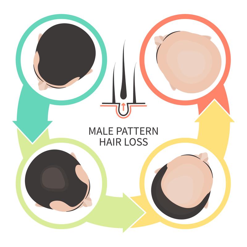 Hair Loss - Harvard Health