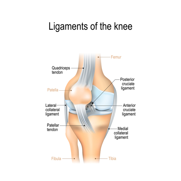 2e30602f6b49a4 A PCL injury is a sprain (stretch or tear of a ligament). The PCL most  often is sprained when the front of the knee hits the dashboard during an  automobile ...