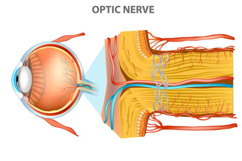 Optic Nerve Swelling (Papilledema) - Harvard Health