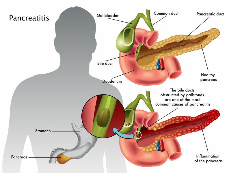 Как решить проблемы с заболеванием поджелудочной железы