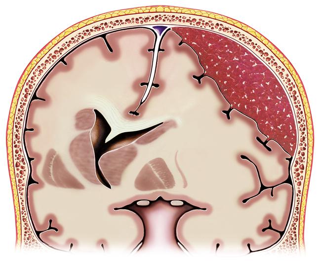 Subdural Hematoma - Harvard Health