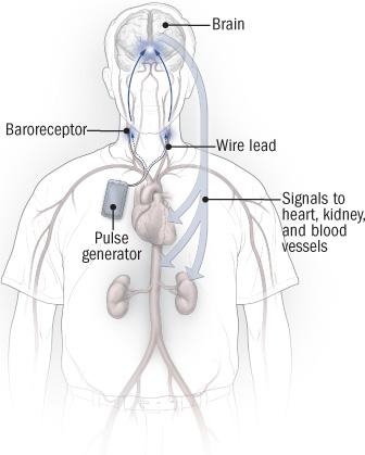 illustration of Rheos system for regulating blood pressure